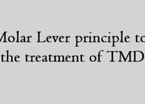 Molar Lever principle to the treatment of TMD